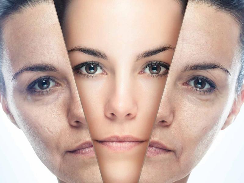 Lifting cervico-facial